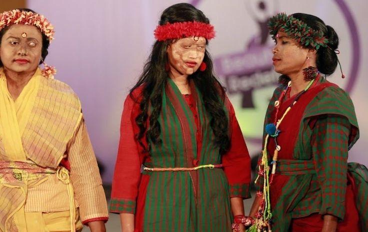 Επίδειξη μόδας στη Ντάκα με γυναίκες-θύματα επιθέσεων με οξύ