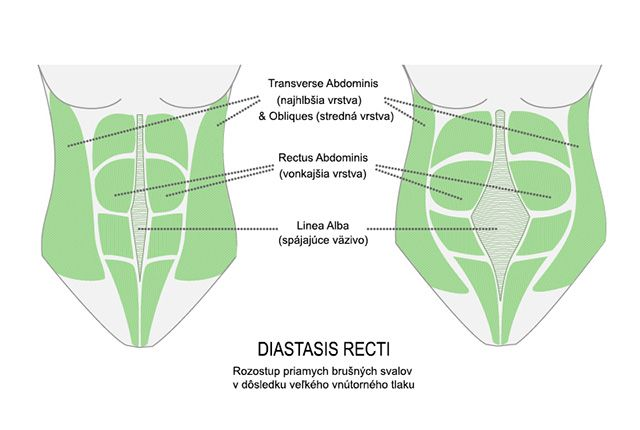 Najlepším odporúčaným liekom na diastázu priamych brušných svalov je správne cvičenie, ktoré ti poradia tréneri, lekár, fyzioterapeut. Prečítaj si viac tu.