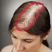 10 zile și zonele tale fără păr vor dispărea. Iar părul își va crește mai rapid
