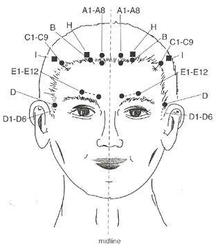 """""""Chinese scalp acupuncture integrates traditional Chinese needling methods with Western medical knowledge of cerebral cortex, has been proven to be a very effective technique for treating multiple sclerosis, central nervous disorders."""" Hao, J. J.. (2013). """"Treatment of multiple sclerosis with chinese scalp acupuncture."""" Glob Adv Health Med 2(1): 8-13. Matrix Energetics, Reiki. http://SensationalMedicine.CreatingCalmNetwork.com @KimberlyBurnham Individualized consultations via phone or Skype."""