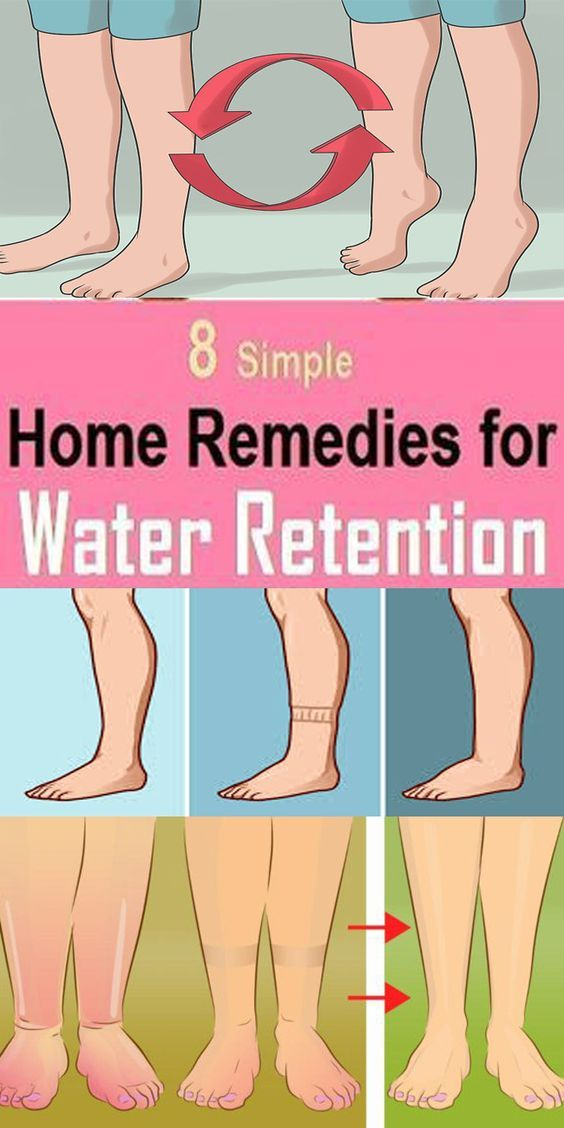 8 Best Home Remedies For Water Retention 8 Best Home Remedies For Water Retention! Edema also known as water or fluid retention is a medical condition that is manifested with bloated feeling and swollen feet. Edema means that you have excessive accumulation of fluid in body tissues and the most common causes are high sodium intake lack of physical activity poor circulation