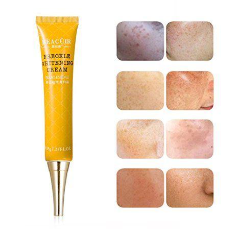 Face Dark Spot Corrector Age Spot Remover Freckly Whitening Cream Melasma Treatment For Dark Spot, Brown Spot,Sun Spot ,Spot… Review