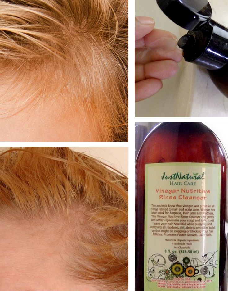 I use to have lovely thick and full beautiful hair. I cannot remember when but I began noticing I was losing hair. I looked in the mirror and I was able to see my scalp in certain places on my head. I was beside myself and couldn't understand this. I found this vinegar nutritive rinse, and after three months of using my hair has been restored. Thick and full, I am grateful for finding this product. I feel and look beautiful again!
