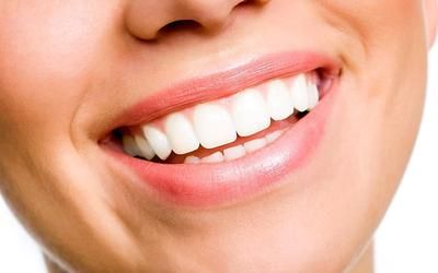 Denti gialli addio. Ecco come fare