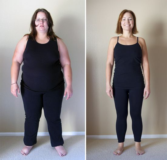 gastric bypass and gastric band Is gastric bypass or gastric sleeve better for you  unlike the laparoscopic  adjustable gastric band (lap band), these two operations are both.
