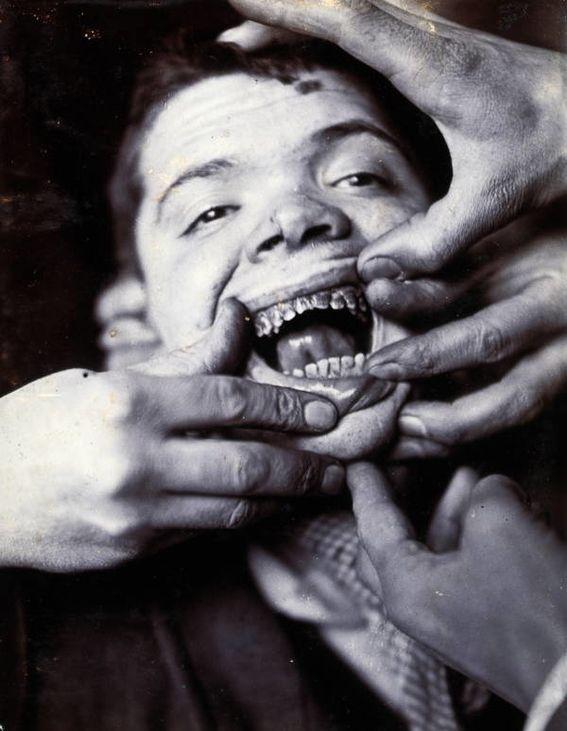 Impactantes Fotos Históricas de la antigua Medicina Psiquiátrica.