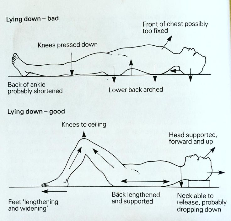"If you're struggling with back pain or any sort of musculoskeletal pain and you have tried doing lots of things with no success this ridiculously simple procedure could help you. Look at the bottom image. It consists of lying down on your back with the knees bent feet flat on the floor and head supported by a couple of books. The arrows correspond to what we call in the Alexander Technique of ""conscious directions"". So you think ""knees to the ceilings , neck to release, etc "". No need to do…"