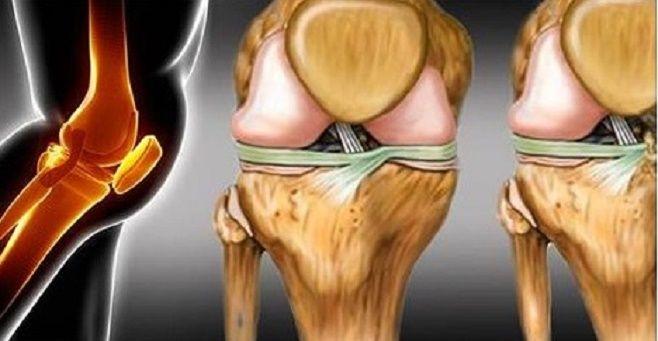 A cartilagem é um tecido flexível que reveste a superfície dos ossos no nível das articulações, protegendo-as.  Ela é muito importante para o movimento das articulações.