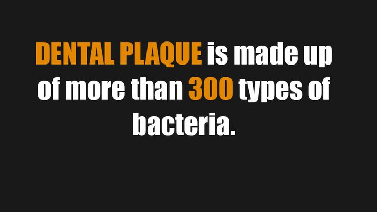 Dental plaque can cause bacterial infection if it is not treated properly in time.