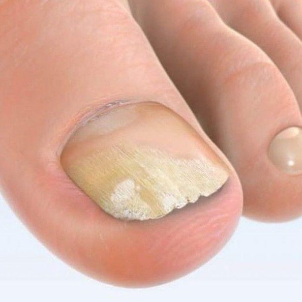 Cel mai bun tratament pentru ciuperca unghiei - cum să scapi de ea în 3 paşi!