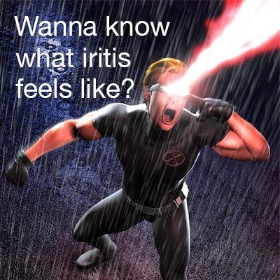 What causes iritis?