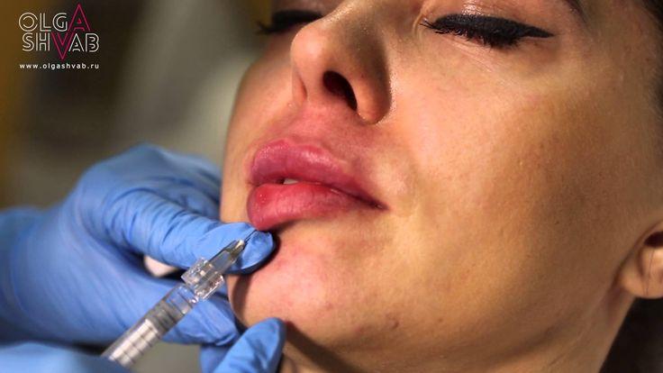 Голливудские губы. Hollywood lips augmentation.