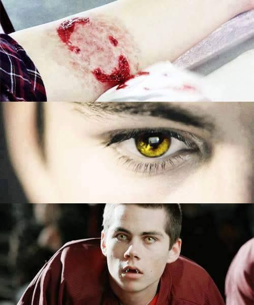 Hey! I know some prefer Stiles the human, but have you ever wondered what if it was Stiles instead of Scott that got bit in the first episode? Try the Discovery Series verse by Kayevelyn! A fork in the road au. Then there's also always werewolf! Stiles in A Delta's Worth by Rhiw. It got hermaphrodite!werewolf!Stiles and future mpreg. All of em are in Ao3. https://archiveofourown.org/series/24703 http://archiveofourown.org/series/76372 Enjoy~ :D
