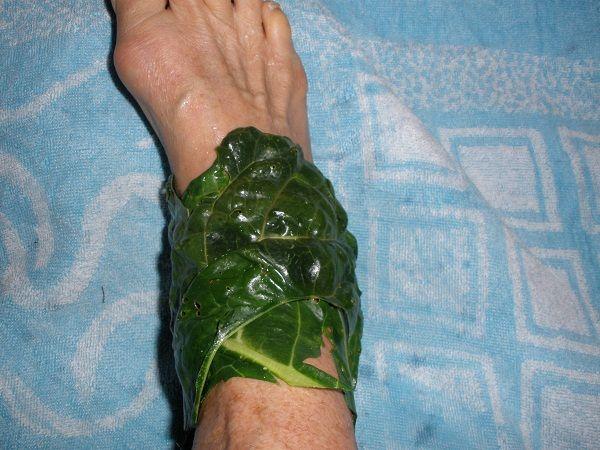 Cum alegem frunzele de varza pentru a fi eficiente ca medicament: tratamente externe cu varza