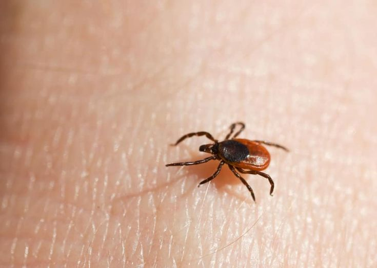 6 ways to remove a tick head after the body is gone dogs