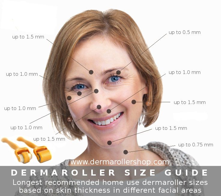 A great visual overview up to what needle size dermaroller may be used in different facial areas. For any not professional dermaroller user we strongly recommend to use in any facial area only up to 1.5 mm dermarollers.