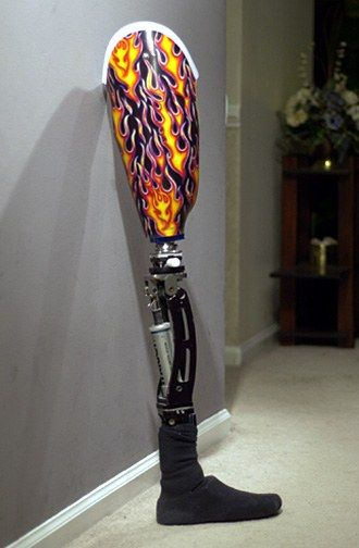 How Much Does A Prosthetic Leg Cost
