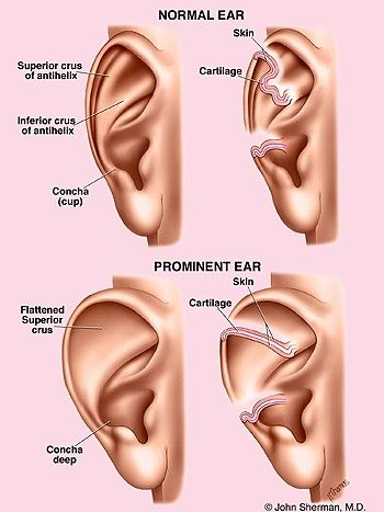 What is otoplasty? Ear surgery, also known as otoplasty, can improve the shape, position or proportion of the ear. Otoplasty can correct a defect in the ear structure that is present at birth that becomes apparent with development or it can treat misshapen ears caused by injury. See More: http://www.thecenterforcosmeticsurgery.net/cosmetic-surgery-procedures/otoplasty.cfm