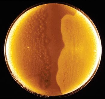 botulism antitoxin