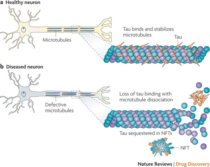 Image result for tau protein neurotubule