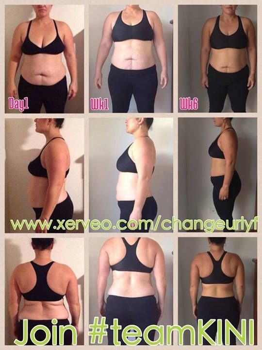 Amazing results with Xerveo - it really does work - check out her Xerveo page