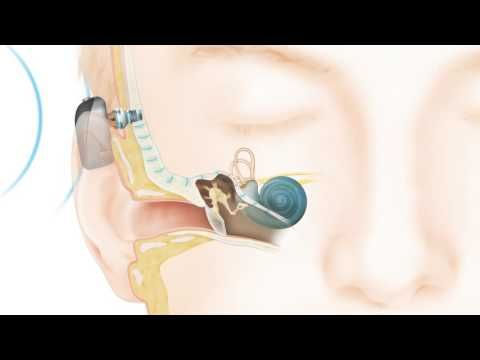 Bone Conduction Hearing Implants | Cochlear Baha® | Cochlear™ Aust/NZ