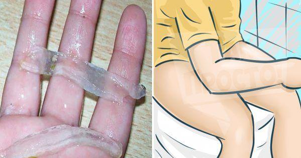 Hemoroidy jsou vyčerpávajícím onemocněním, protože hledání účinného léku proti bolesti, zánětu a nepohodlí, může trvat i roky. Nicméně dají se léčit pomocí rostlin, konkrétně aloe vera. Je to silný biogenní stimulátor: zmírňuje zánět v případě akutního průběhu onemocnění, působí preventivně při