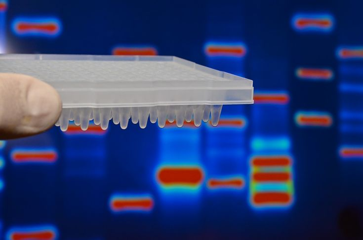 Read about a study linking a single-point mutation in a critical gene to the main symptoms that doctors see in Alport syndrome.