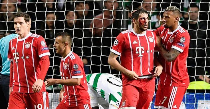 Ch.L 17/18: Celtic Glasgow - Bayern München 1:2 - Sechster Sieg im sechsten Spiel für Jupp Heynckes als Trainer des FC Bayern. Auch die kampfstarke Mannschaft von Celtic bezwingt die Münchner nicht – nach dem 2:1 in Schottland steht der Deutsche Meister schon sicher im Achtelfinale der Champions League.