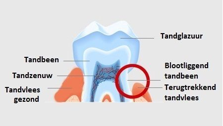 Alles over tanden: gevoelige tanden