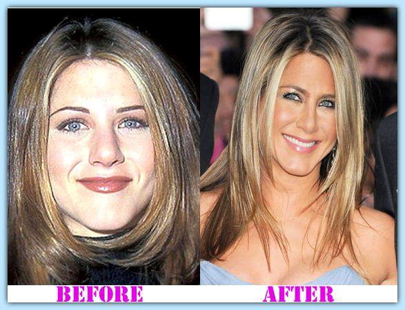 Jennifer Aniston Plastic Surgery #JenniferAnistonplasticsurgery #JenniferAniston #psycwellness