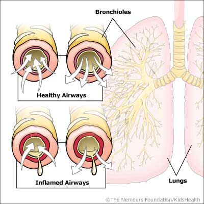 20 best Respiratory System images on Pinterest | Respiratory system, Medicine and Human anatomy