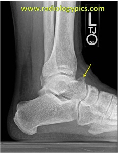 Dorsal talar osteophyte - Lateral radiograph of the ankle ...