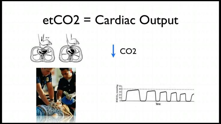 capnography in cardiac arrest emts and paramedic students