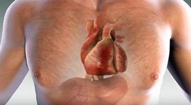 Na sociedade atual, em que o número de obesos aumenta, bem como o consumo de produtos industrializados, ricos em gorduras, açucares e sal, não é incomum que muitos sofram com problemas cardíacos. Ataques cardíacos são um risco real e presente...