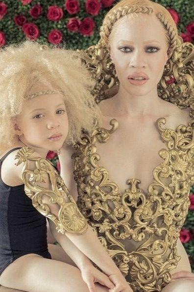 Gourgeous African albinos | Natural hair