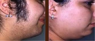 17 images about hair removal on pinterest laser hair for Tattoo removal scottsdale az
