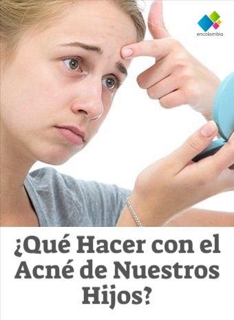 """¿Acné en la pubertad? Otra de las preocupaciones tanto de padres como de hijos en la etapa de la pubertad es el acné.  Durante este periodo los jovencitos tienen una serie de procesos y cambios hormonales, entre ellos, el aumento de grasa en su piel; principalmente en  la cara, el cuello,  la espalda, el pecho y los hombros;  allí se depositan bulticos de sebo, puntos negros, barros  y espinillas lo que en conjunto se denomina como """"acné"""". ¿Cuál es la edad del acné? Parents, Sons, Face Care, Black Dots"""