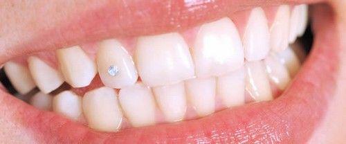 Đính đá vào răng có hại không