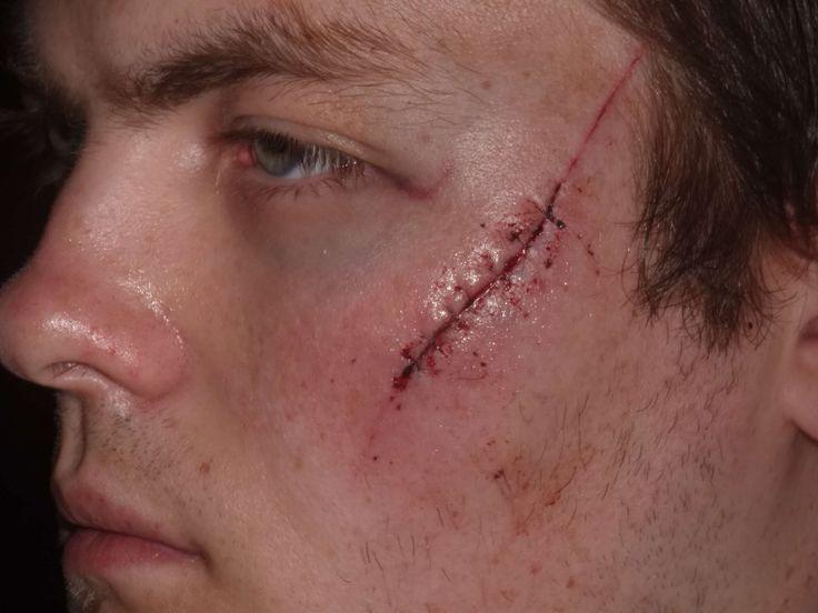 Seems Facial scar makeup