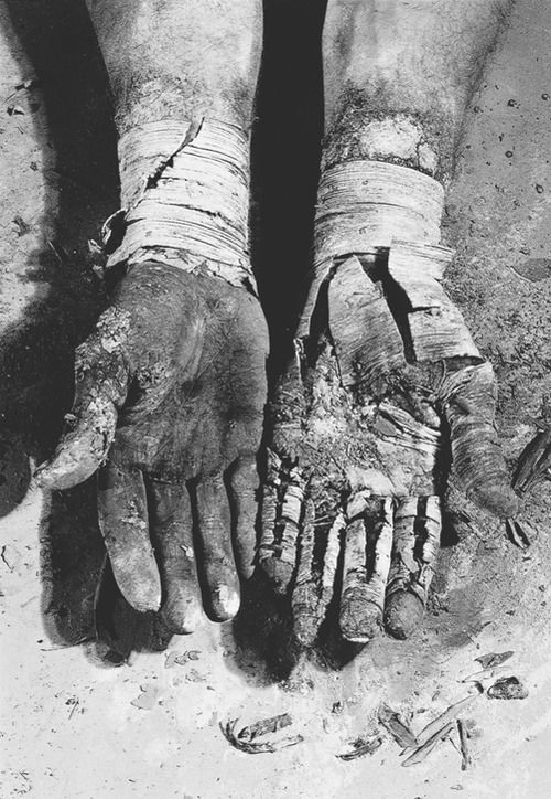 1979. Dieter Appelt. Die Befreiung der Finger   (Liberation of the Fingers).  Gelatin silver print.  Hands identified as the photographer's.