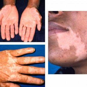 Vista previa del artículo Qué es la enfermedad de Addison y cuáles son sus síntomas