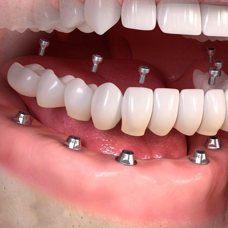 3D Printing: Dental company Straumann looks to get their teeth into 3D printing -