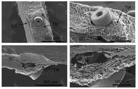 Figure 5 Various scanning electron microscope views of the iStent inject positioned within the trabecular meshwork (TM) and Schlemm's canal (SC) in human anterior segment culture.