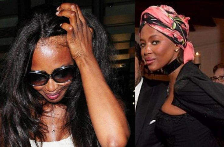 Naomi Campbell Is Planning To Get A Hair Transplant To Fix Her Edges  Read the article here - http://www.blackhairinformation.com/general-articles/celebrities/naomi-campbell-planning-get-hair-transplant-fix-edges/