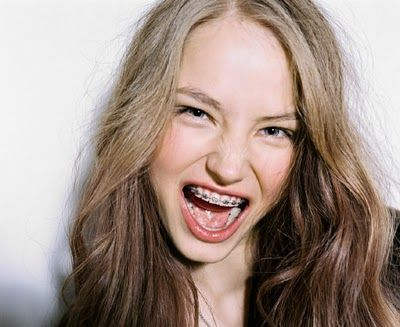 headshots for girls with braces - Google Search