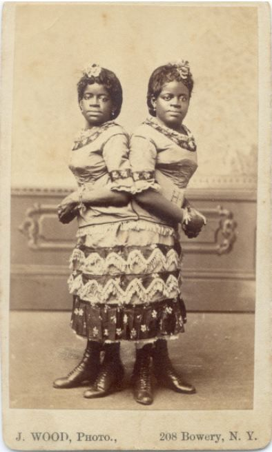 tuesday-johnson:  ca. 1870, [carte de visite portrait of conjoined twins, Mille and Christine], J. Wood via the Syracuse University Library, Ronald G. Becker Collection of Charles Eisenmann Photographs