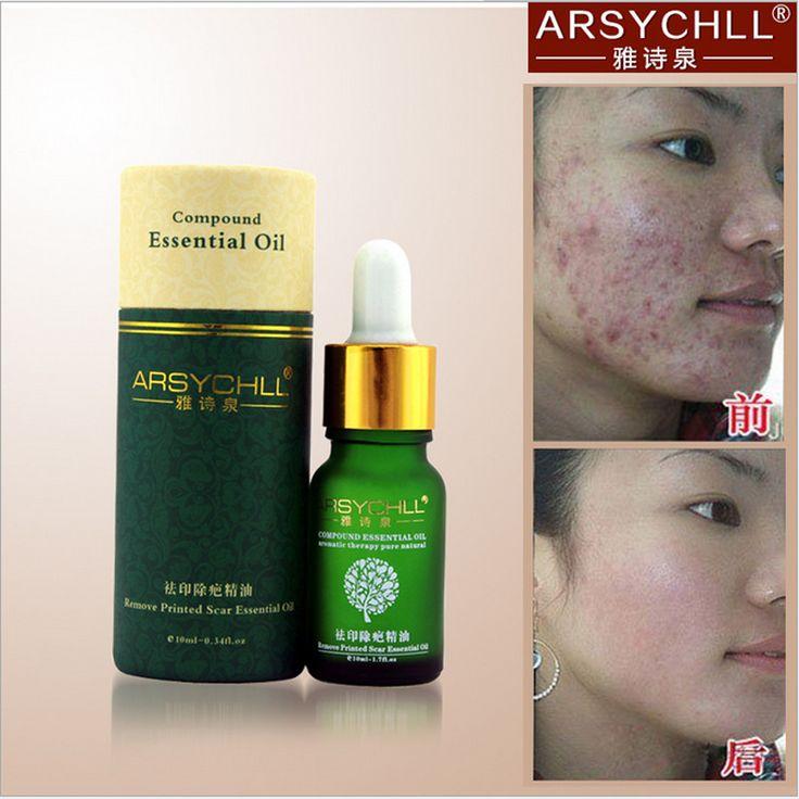Face Care Acne Scar Removal Cream Acne Spots Skin Care Treatment Stretch Marks Whitening Remove Acne Face Essential Oil Care