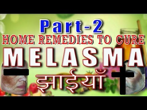 Home Remedies to cure Melasma-Part 2 II चेहरे के दाग धब्बो का घरेलू उपचार- भाग -2 II - YouTube