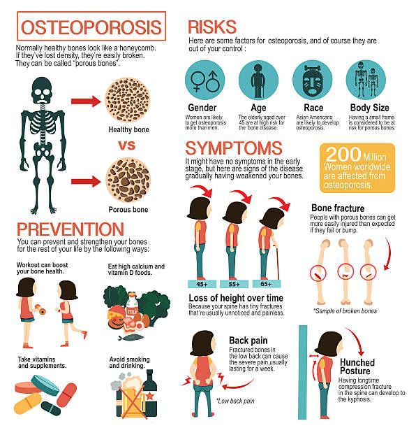 15++ Osteoporosis management in women who had a fracture info